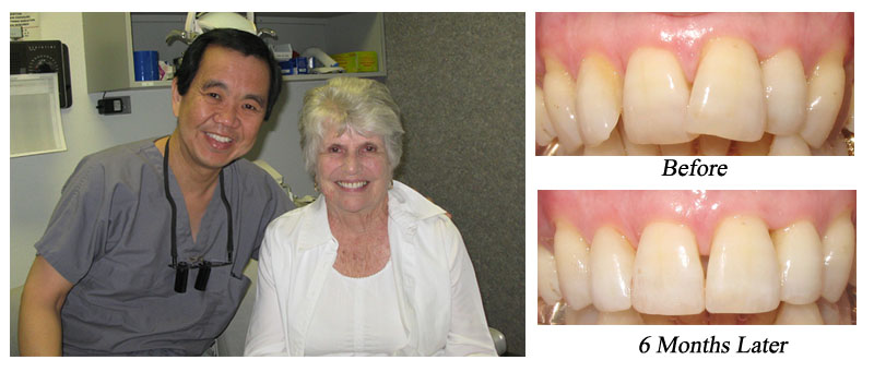 James Lee, DDS San Antonio Dentist Six Month Braces Powerprox Periolas Laser Gum Treatment