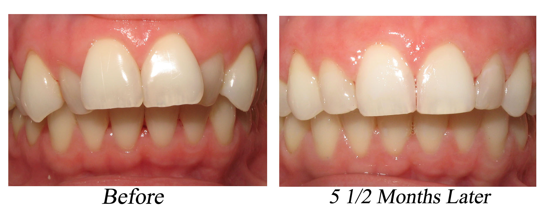 James Lee, DDS San Antonio Dentist Six Month Braces Powerprox Periolase Laser Gum Treatment